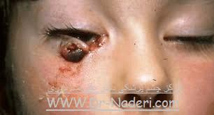 پارگی پلک Eye emergencies - eyelid laceration