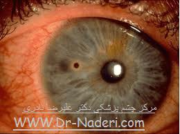 جسم خارجی قرنیه Eye emergencies Corneal Forign Body