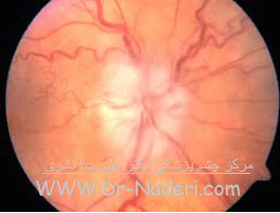 سکته عصب چشم Eye emergencies - Anterior ischemic optic neuropathy (AION)