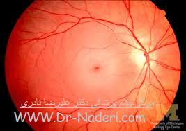 انسداد شریان مرکزی شبکیه Eye emergencies - Central Retinal Artery Obstruction (CRAO)