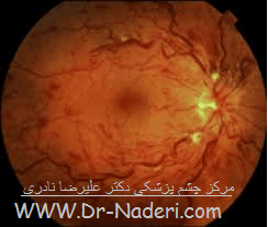 انسداد ورید مرکزی شبکیه Eye emergencies - Central Retinal Vein Occlusion (CRVO)