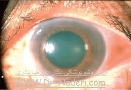 گلوکوم حاد Eye emergencies - acute angle closure glaucoma