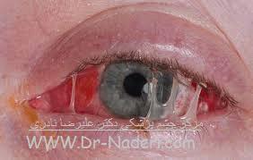 عفونت حاد سطح چشم - کنژنکتیویت حاد Eye emergencies - acute conjunctivitis