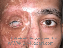 سوختگی حرارتی چشم Eye emergencies - eye thermal burn