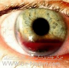 خونریزی داخل اتاق قدامی چشم - هیفما Eye emergencies - hyphema