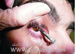 ضربه با جسم تیز به چشم Eye emergencies penetrating trauma