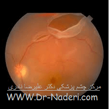 پارگی شبکیه چشم Eye emergencies - retinal detachment