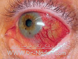 اسکلریت Eye emergencies - scleritis