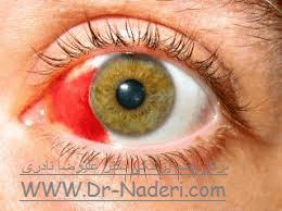 خونریزی زیر ملتحمه Eye emergencies - subconjunctival haemorrhage