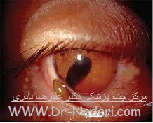 ضربه به چشم Eye emergencies - trauma