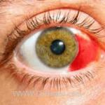 خونریزی زیر ملتحمه Subconjunctival Hemorrhage