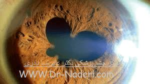 التهاب داخل چشم - یووئیت Uveitis
