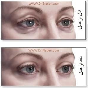 بلفاروپلاستی یا جراحی زیبایی پلک blepharoplasty