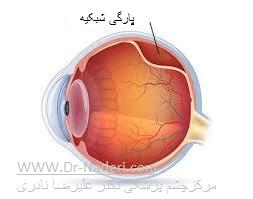 جدا شدگی شبکیه Retinal Detachment