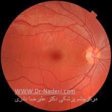 شبکیه چشم retina